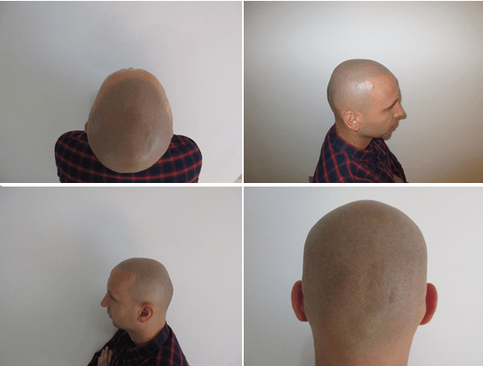 scalp tattooing or scalp micro pigmentation