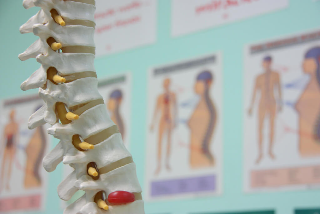 spinal injury and compensation claims