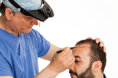 Negligence claims for hair transplants